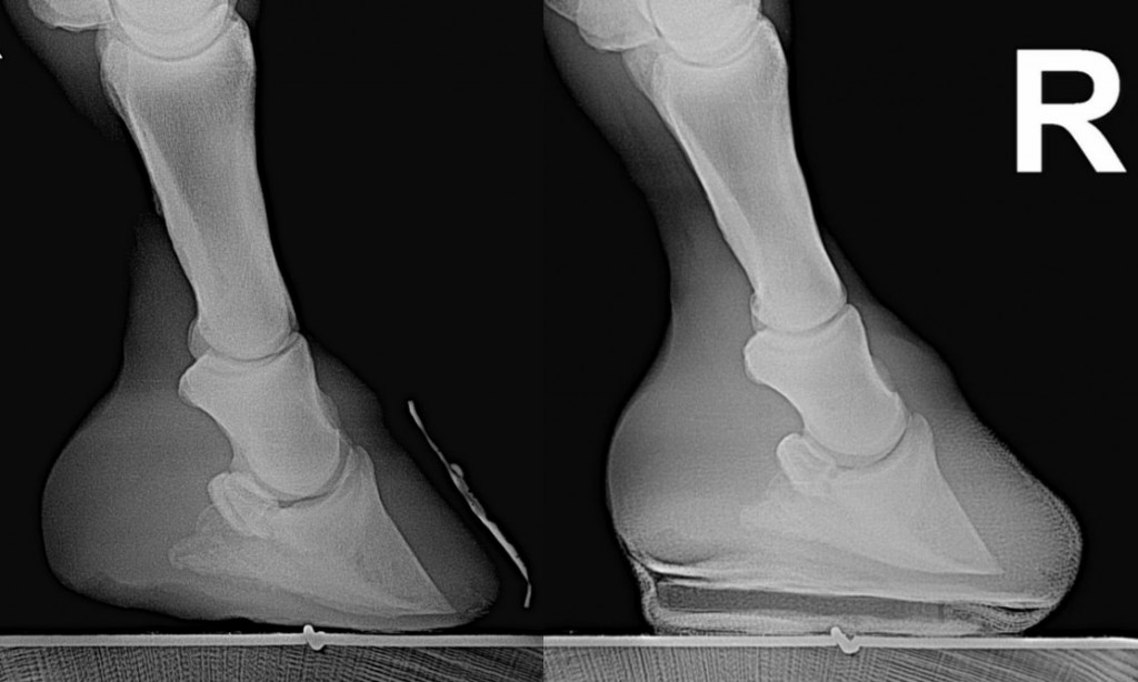 xrays of foundered hoof with and without Equicast