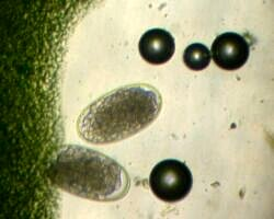 Strongyle eggs (100x magnification)